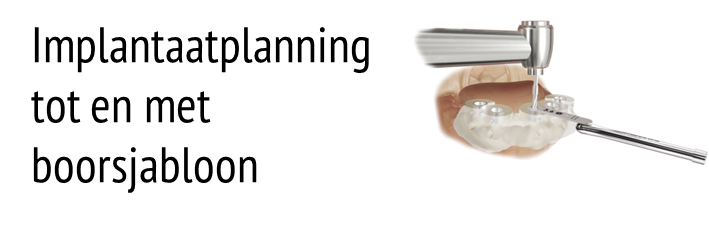 Slide 3D Implantaatplanning